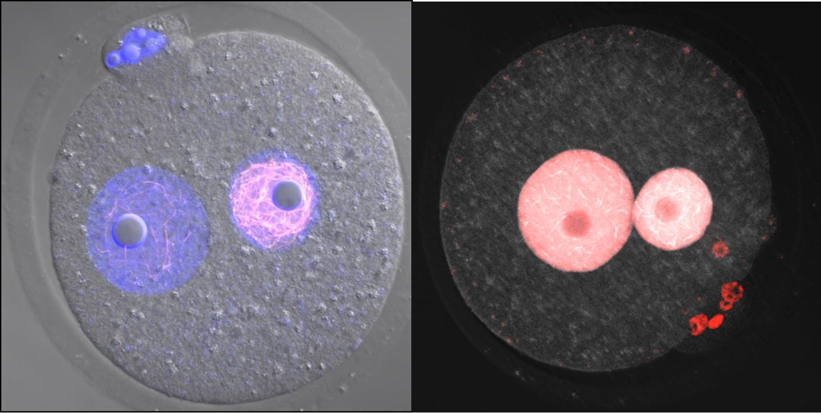 Discovery of Novel Nuclear Structure Inside Fertilized Eggs - Research Results Bring Us Closer to Solving the Riddle of the Development of Animals -- Kindai University