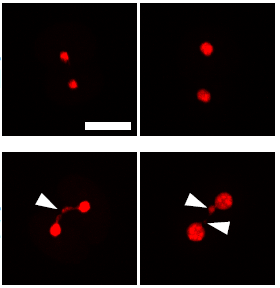 Chromosome segregation error during early cleavage in mouse pre-implantation embryo does not necessarily cause developmental failure after blastocyst stage