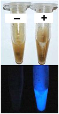 ルミノール反応による便潜血の検出法を確立 法医学で血痕検出に用いられる試薬の応用