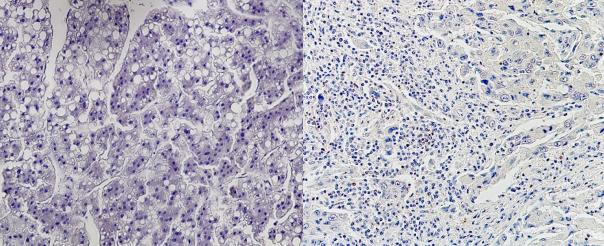 世界初!免疫チェックポイント阻害剤の有効性を事前予測 個々の患者に適した肝がん薬物治療法の確立に期待